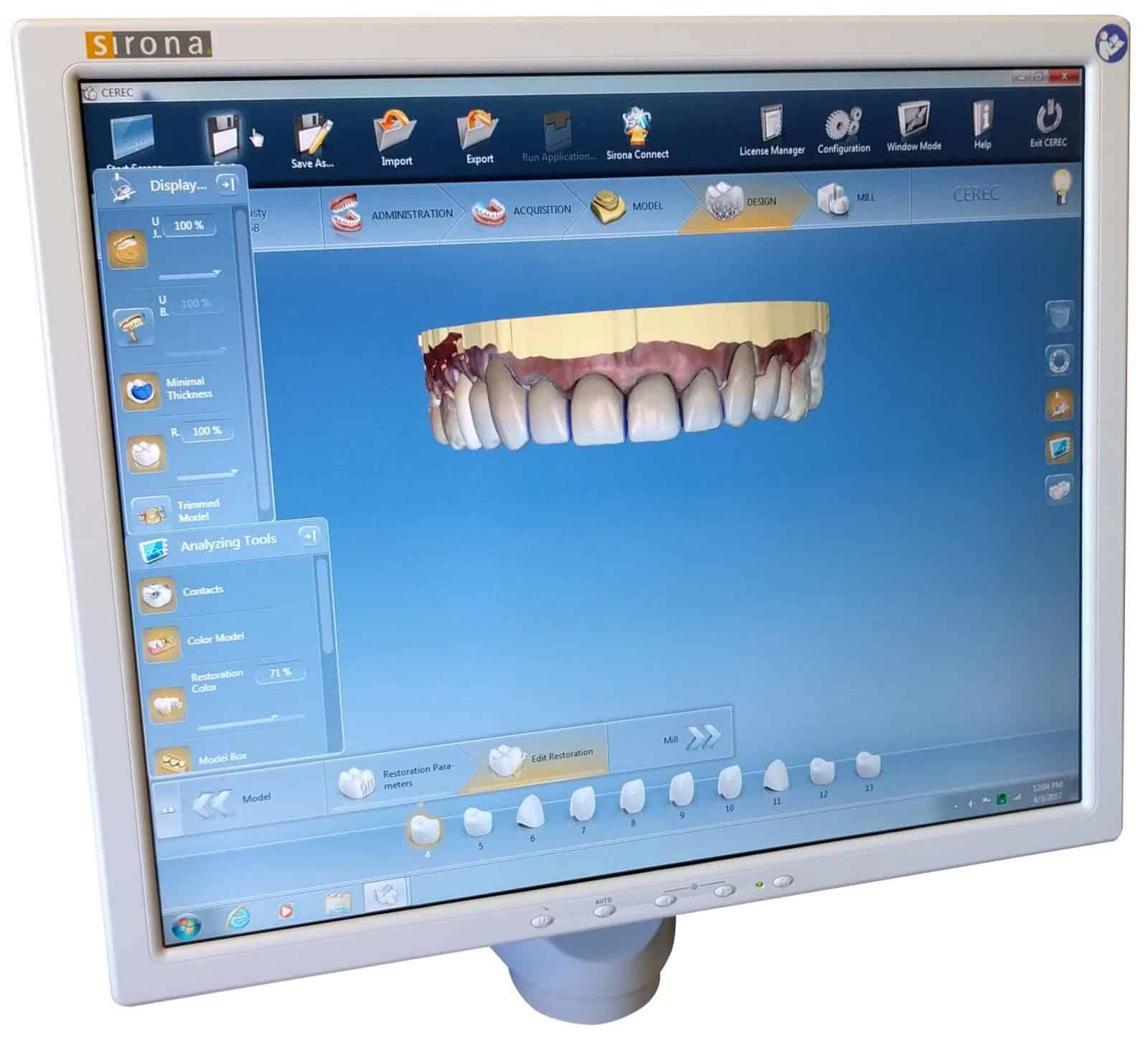 Smile Makeover using the CEREC